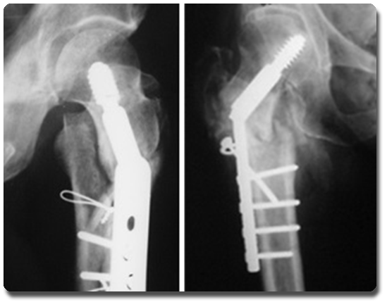Resultado de imagen de 600 personas podrían estar afectadas por unas prótesis de cadera defectuosas